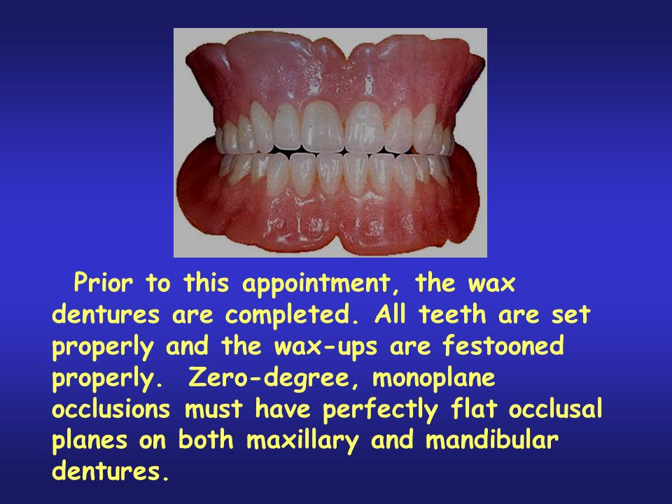 Prior to this appointment, the wax dentures are completed