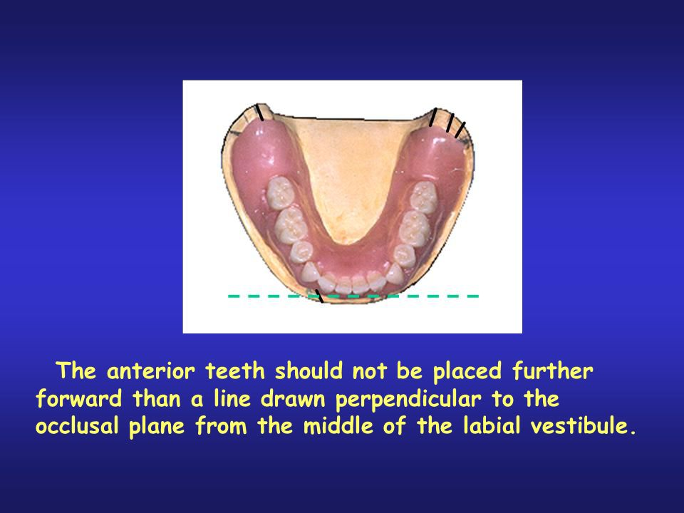 The mandibular anterior teeth should not be placed further forward than a line drawn perpendicular to the occlusal plane from the middle of the labial vestibule. To do so would place the mandibular anterior teeth ahead of the axis of rotation and contribute to instability of the mandibular denture.