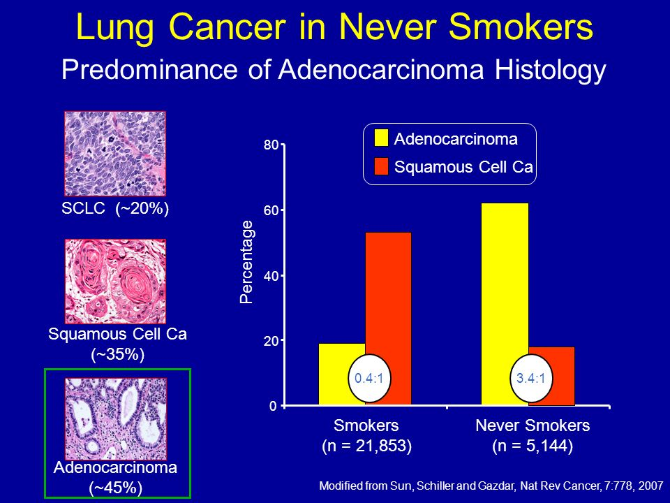 Lung Cancer in Never Smokers