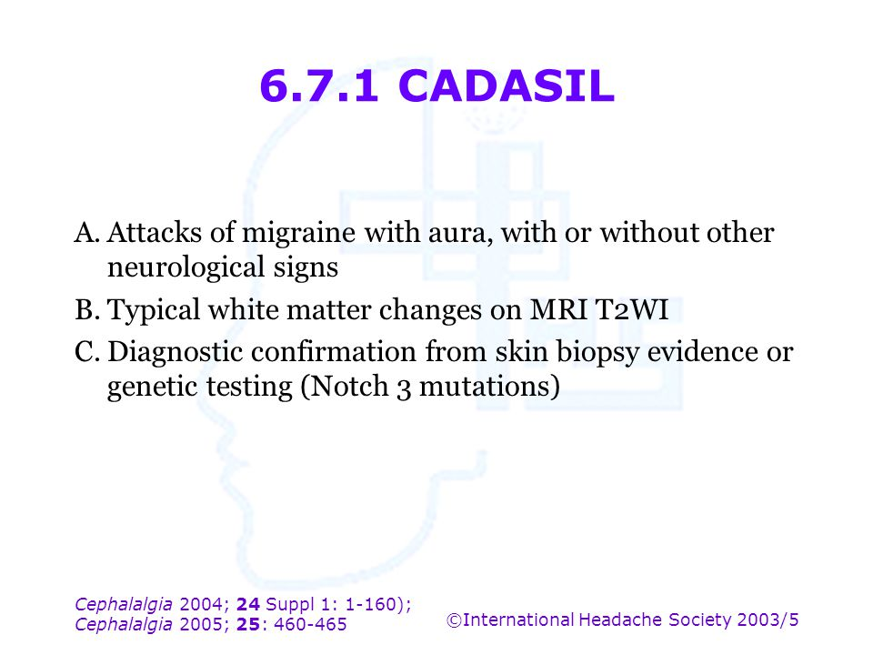 6.7.1 CADASIL A. Attacks of migraine with aura, with or without other neurological signs. B. Typical white matter changes on MRI T2WI.