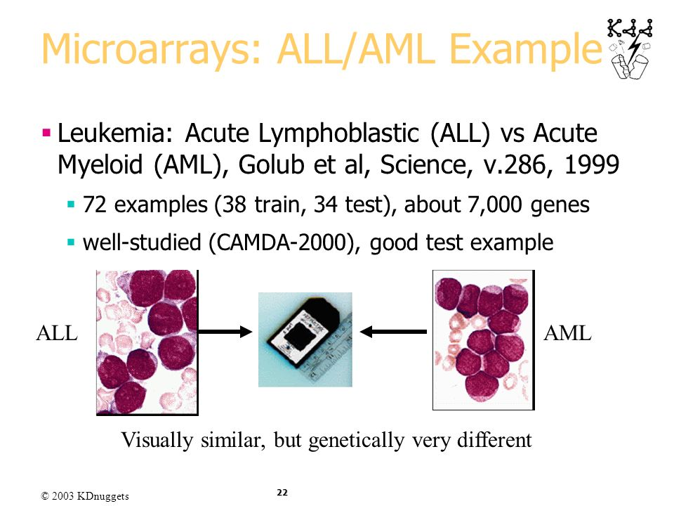 Microarrays: ALL/AML Example