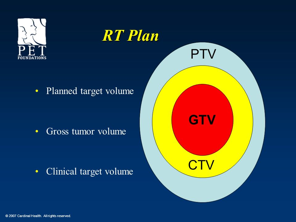 RT Plan PTV GTV CTV Planned target volume Gross tumor volume CTV
