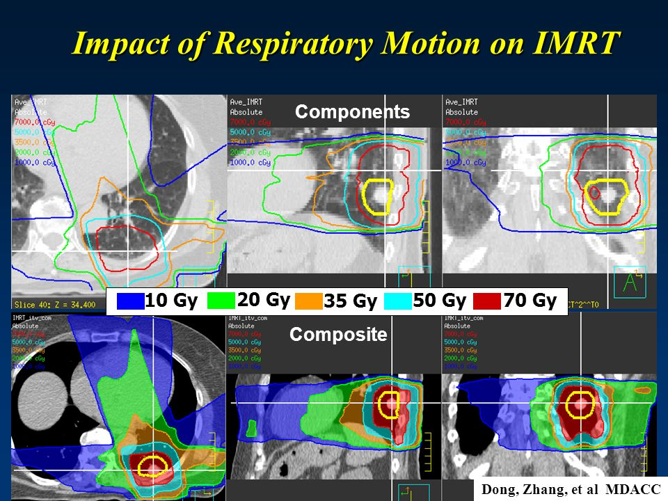 Impact of Respiratory Motion on IMRT