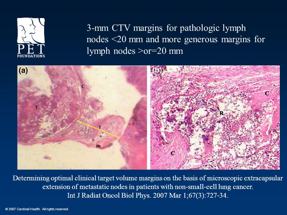 3-mm CTV margins for pathologic lymph nodes <20 mm and more generous margins for lymph nodes >or=20 mm