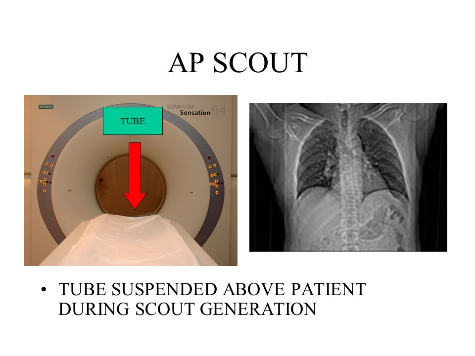 AP SCOUT TUBE TUBE SUSPENDED ABOVE PATIENT DURING SCOUT GENERATION