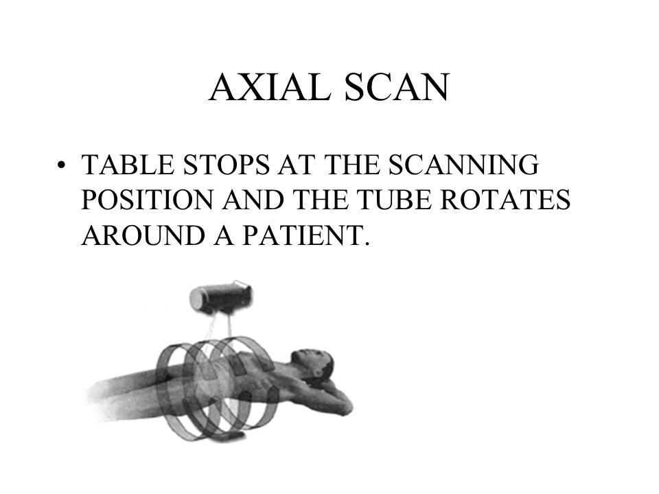AXIAL SCAN TABLE STOPS AT THE SCANNING POSITION AND THE TUBE ROTATES AROUND A PATIENT.