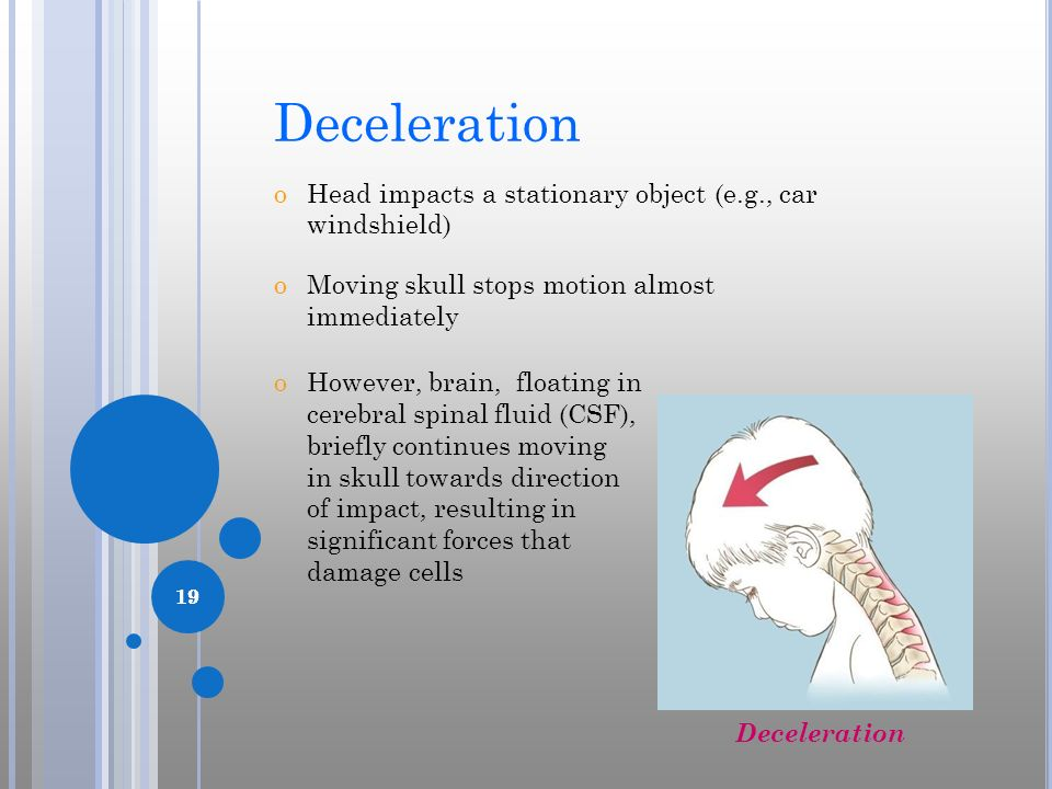 Deceleration Head impacts a stationary object (e.g., car windshield)