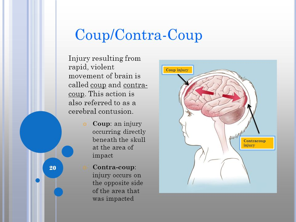 Coup/Contra-Coup