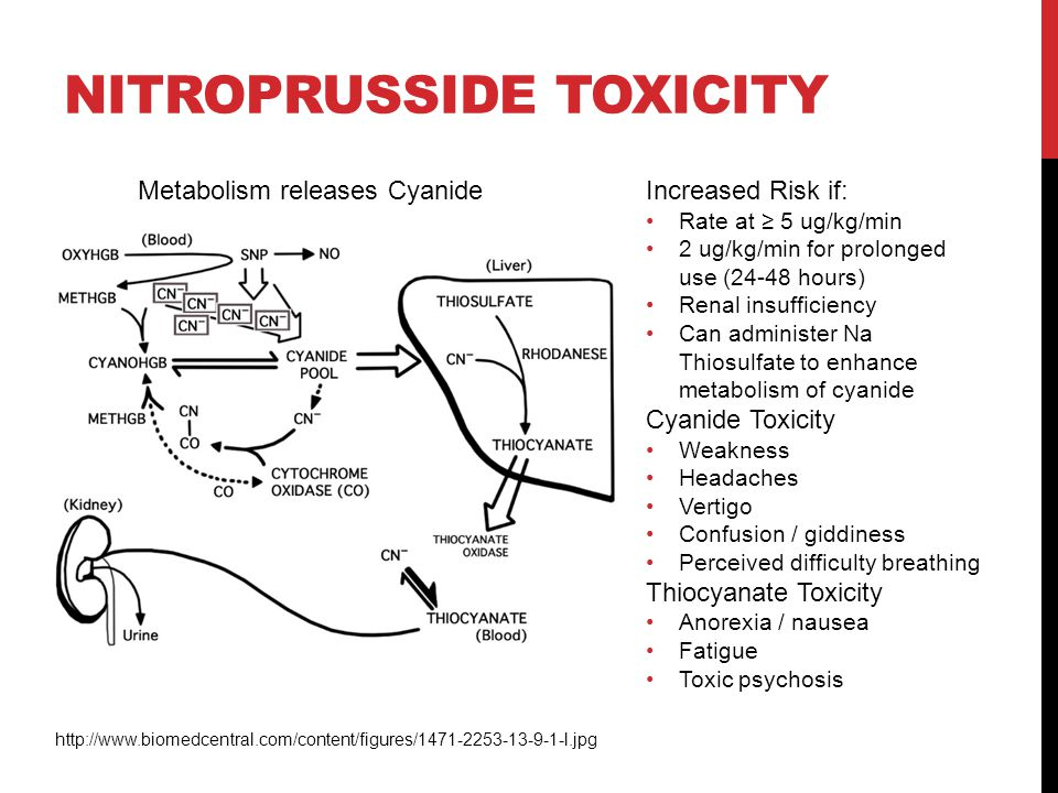 Nitroprusside Toxicity