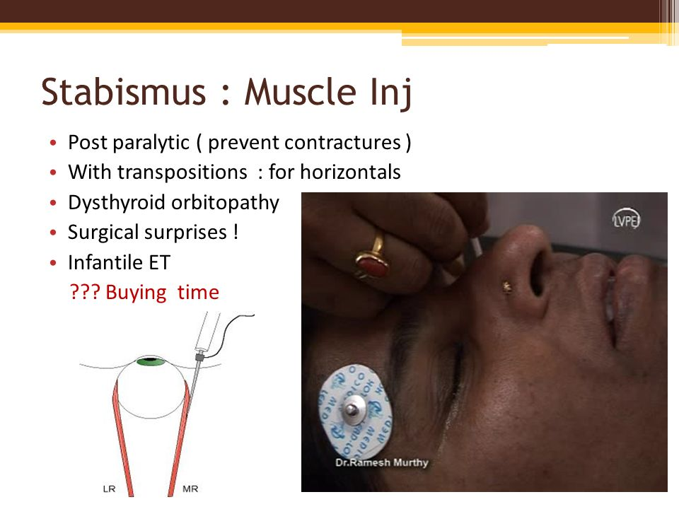 Stabismus : Muscle Inj Post paralytic ( prevent contractures )