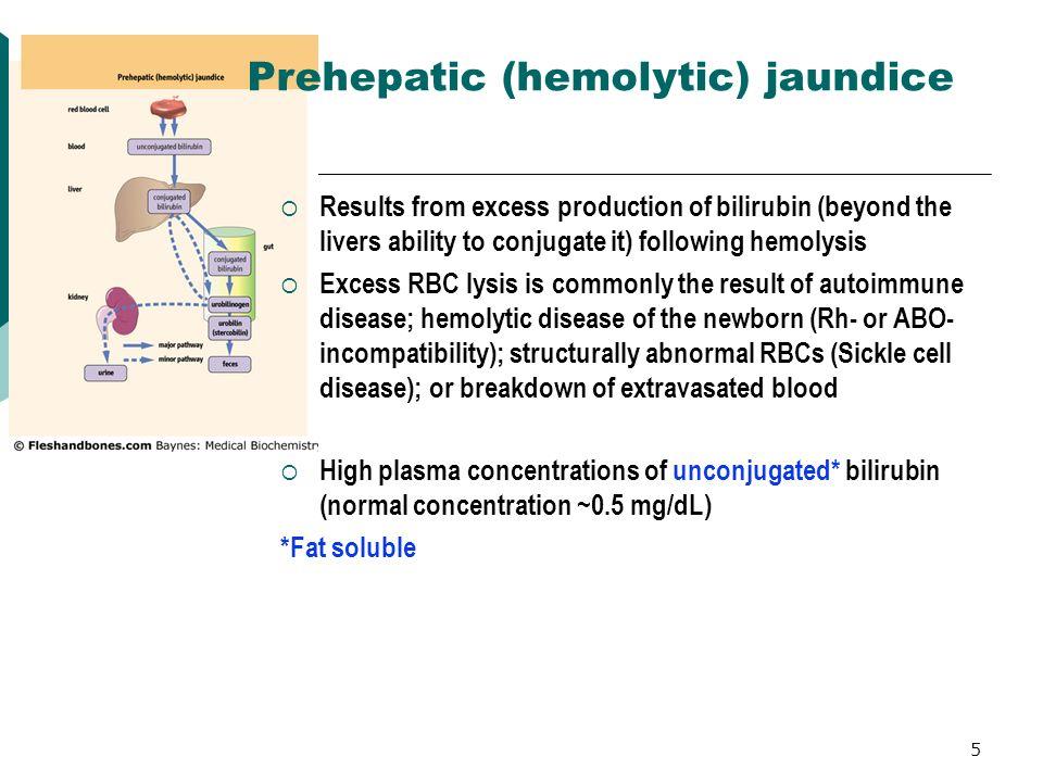 Prehepatic (hemolytic) jaundice