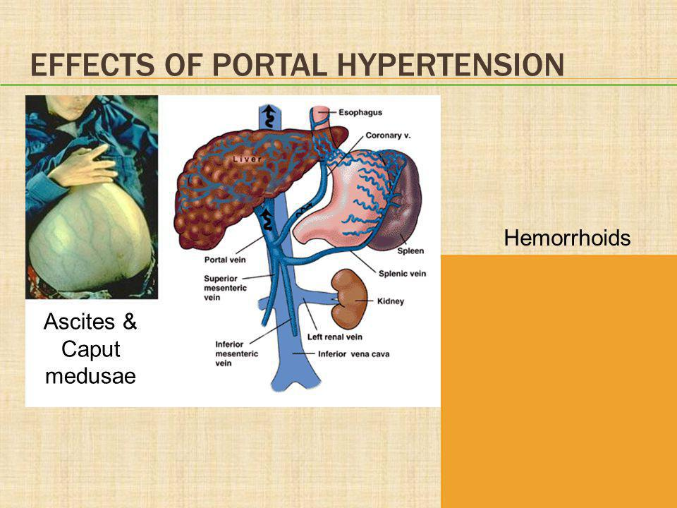 Effects of Portal Hypertension