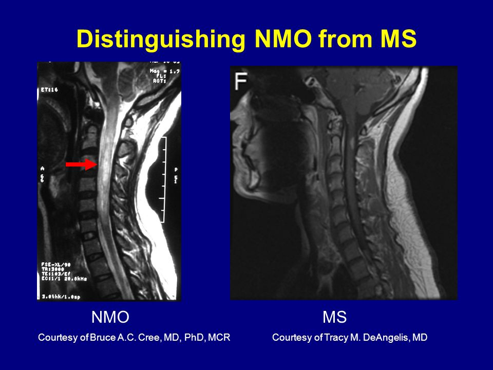 Distinguishing NMO from MS
