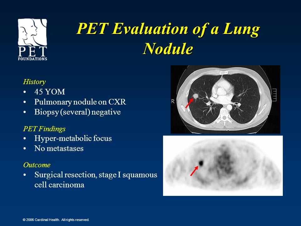 PET Evaluation of a Lung Nodule