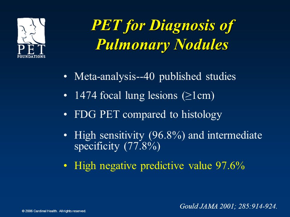 PET for Diagnosis of Pulmonary Nodules