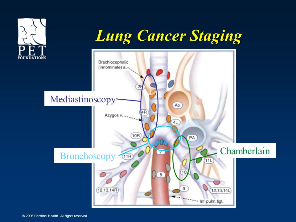 Lung Cancer Staging Mediastinoscopy Chamberlain Bronchoscopy
