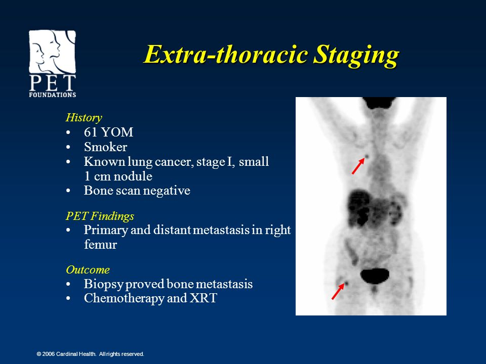 Extra-thoracic Staging