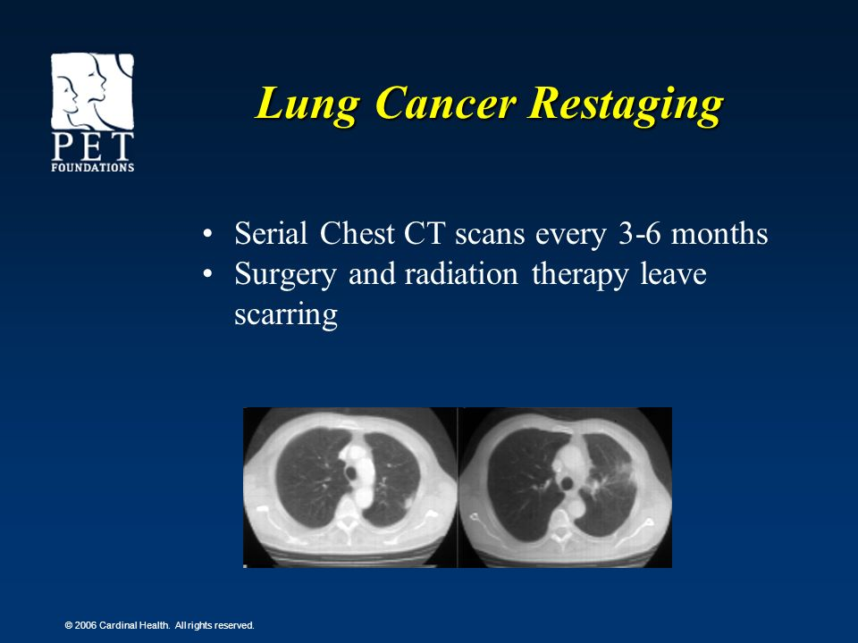 Lung Cancer Restaging Serial Chest CT scans every 3-6 months