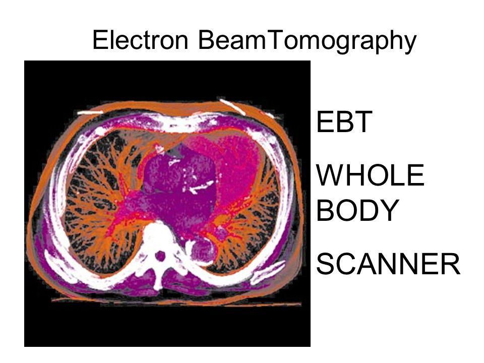 Electron BeamTomography