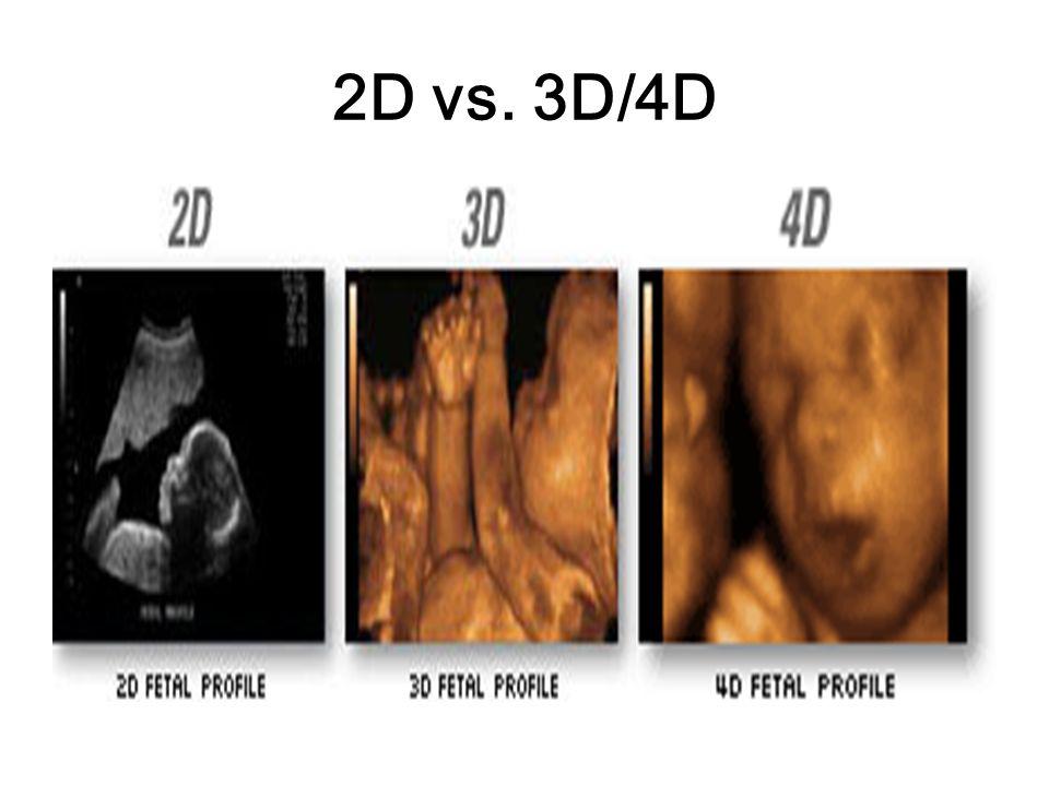2D vs. 3D/4D