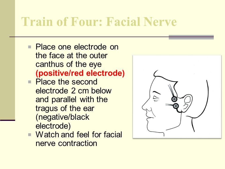Train of Four: Facial Nerve