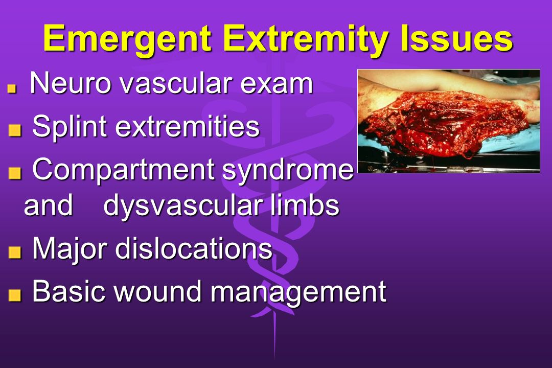 Emergent Extremity Issues