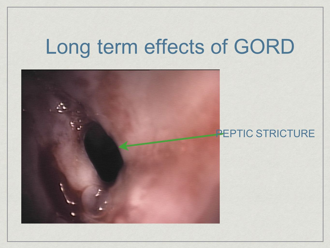 Long term effects of GORD