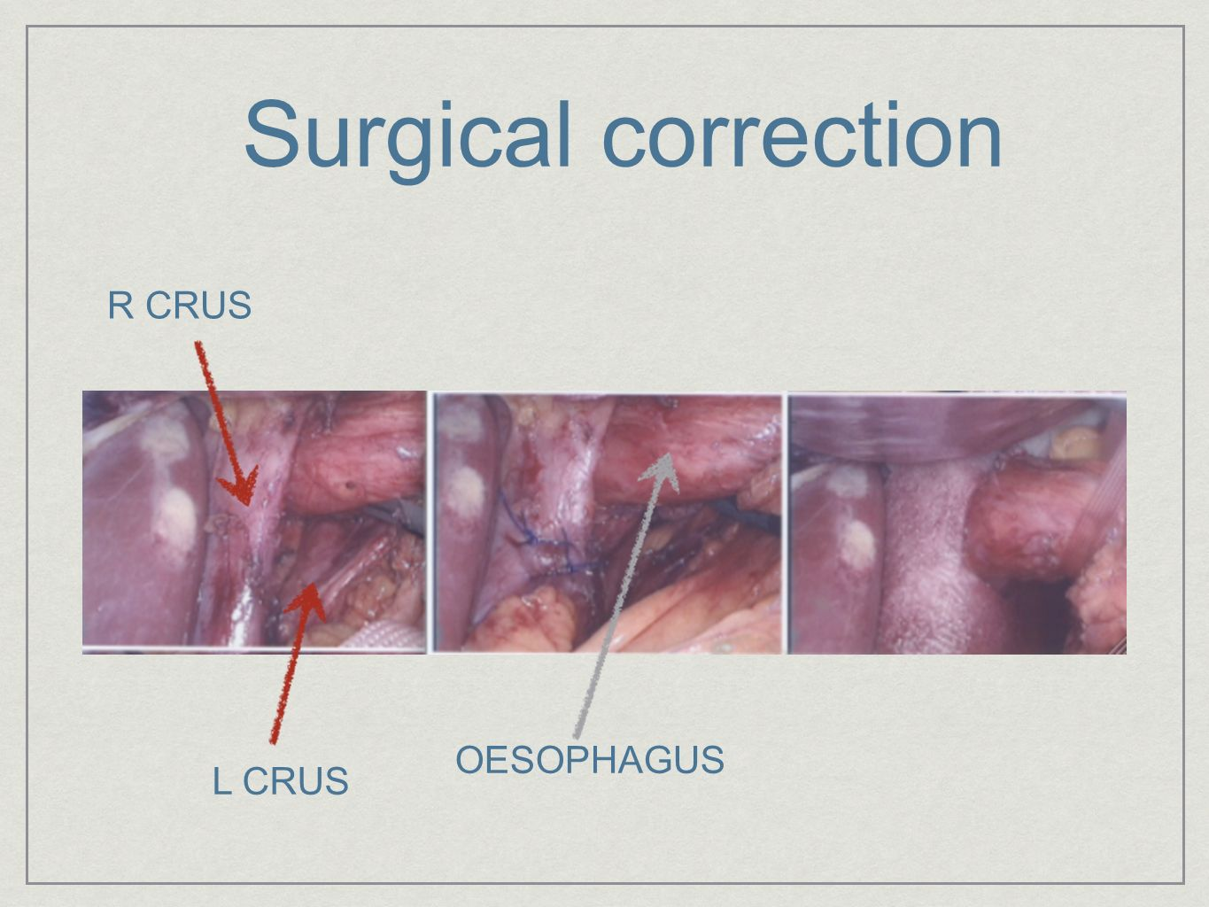 Surgical correction R CRUS OESOPHAGUS L CRUS
