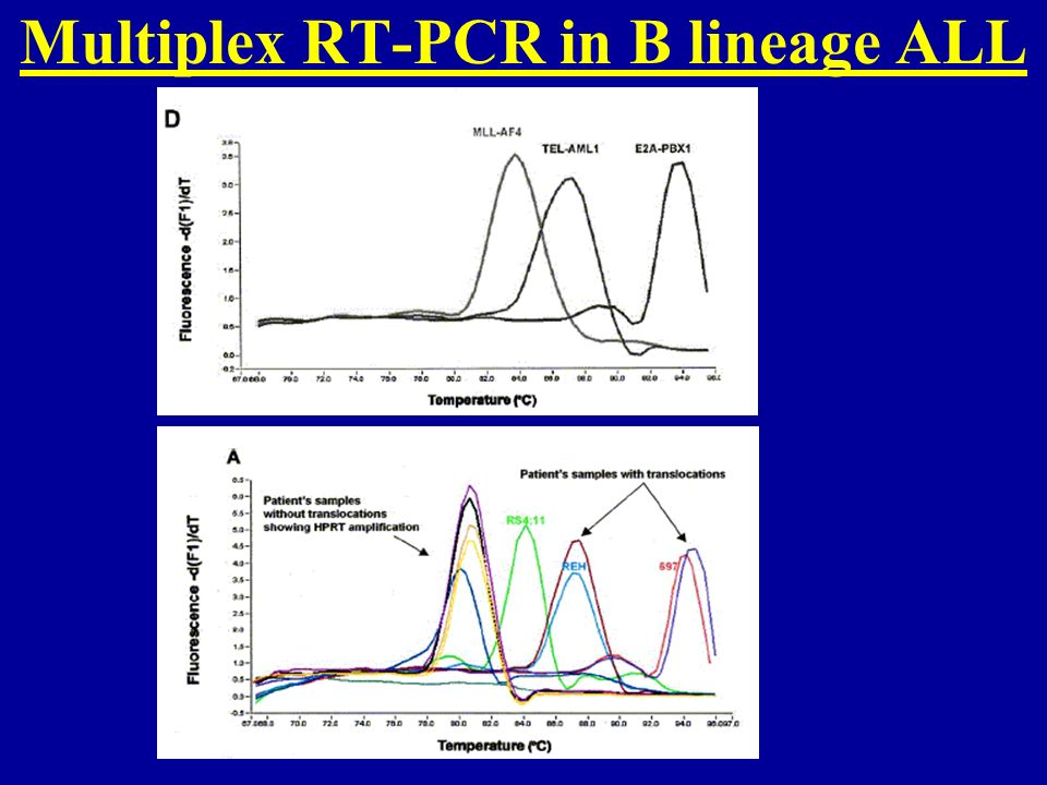 Multiplex RT-PCR in B lineage ALL