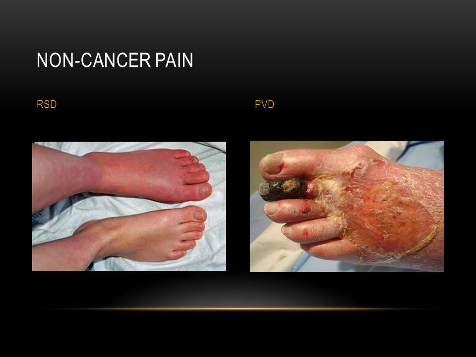 Non-cancer Pain RSD PVD