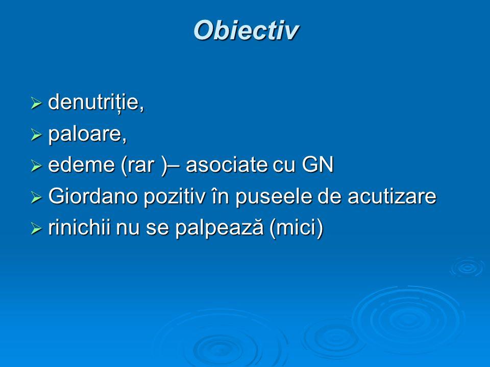 Obiectiv denutriţie, paloare, edeme (rar )– asociate cu GN