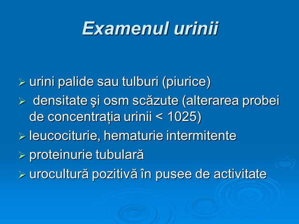 Examenul urinii urini palide sau tulburi (piurice)