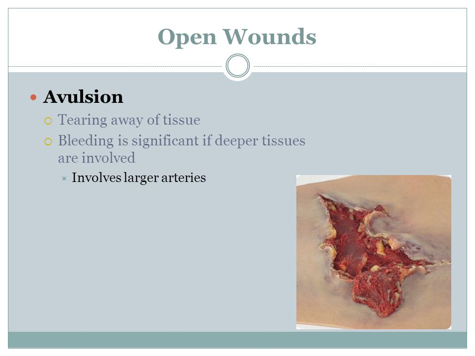 Open Wounds Avulsion Tearing away of tissue