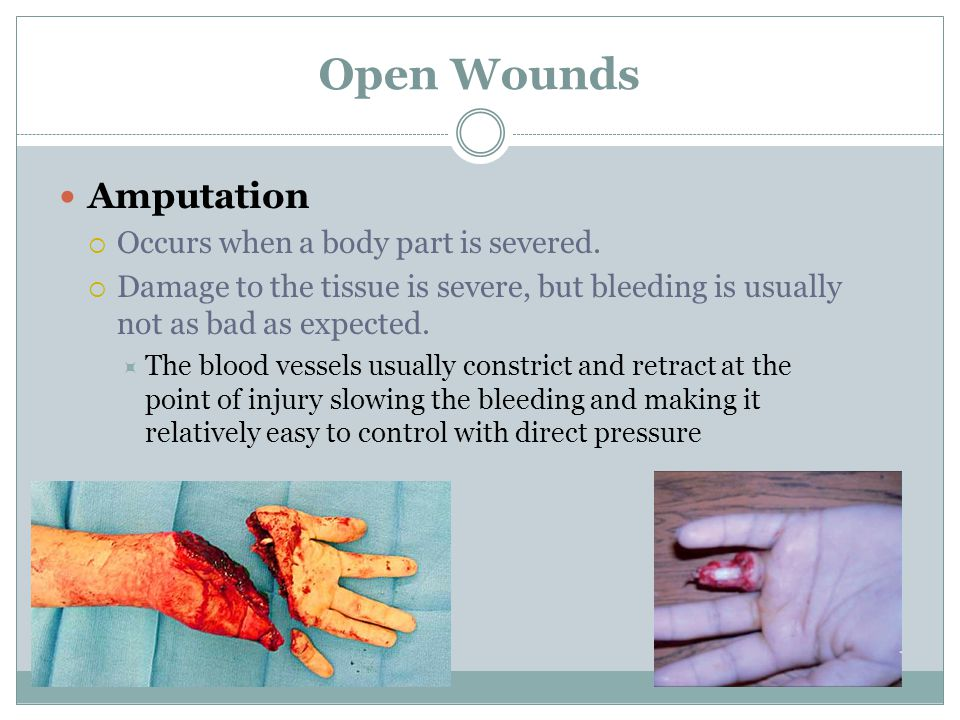 Open Wounds Amputation Occurs when a body part is severed.