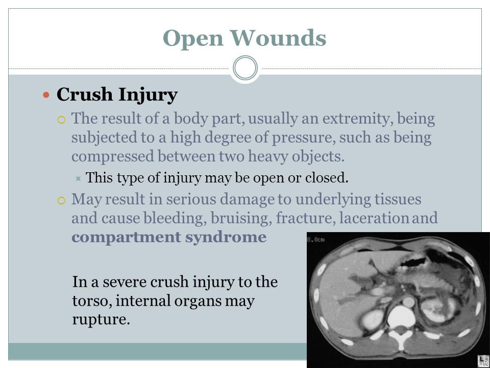 Open Wounds Crush Injury