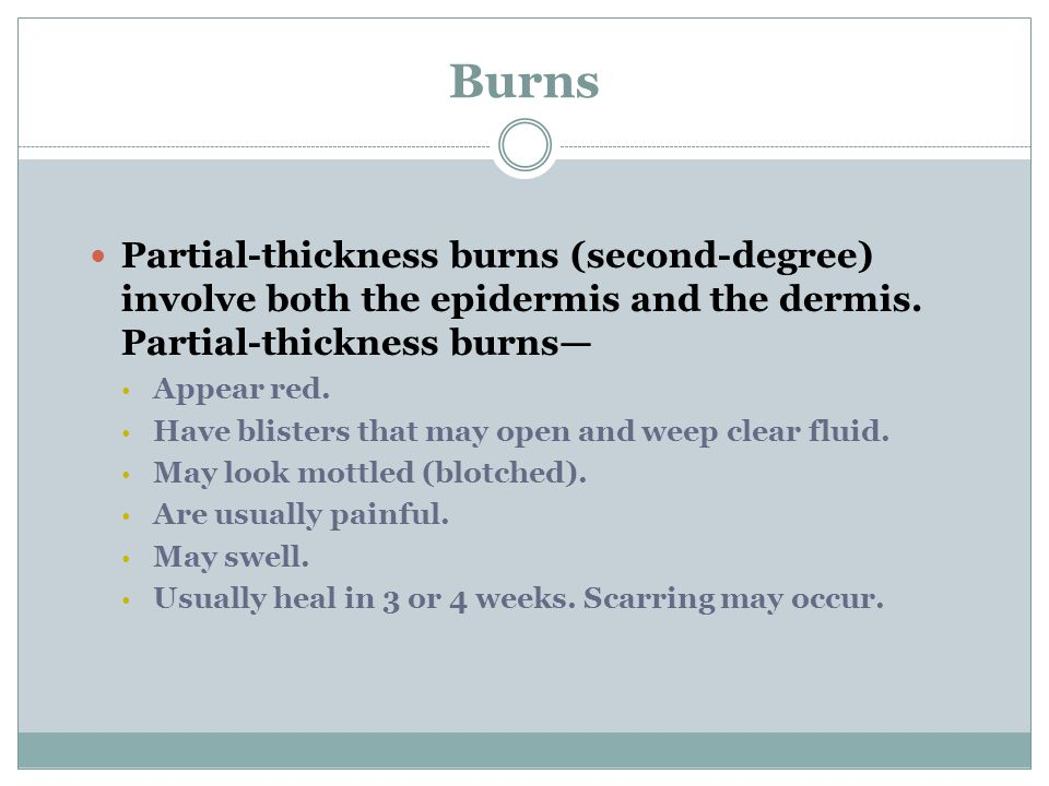 Burns Partial-thickness burns (second-degree) involve both the epidermis and the dermis. Partial-thickness burns—