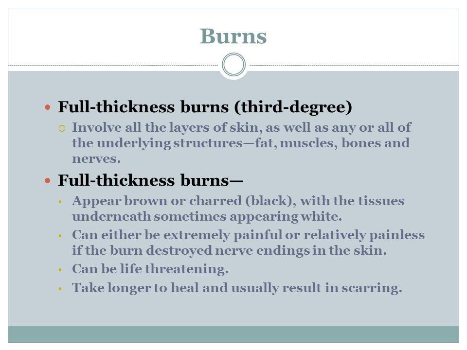 Burns Full-thickness burns (third-degree) Full-thickness burns—