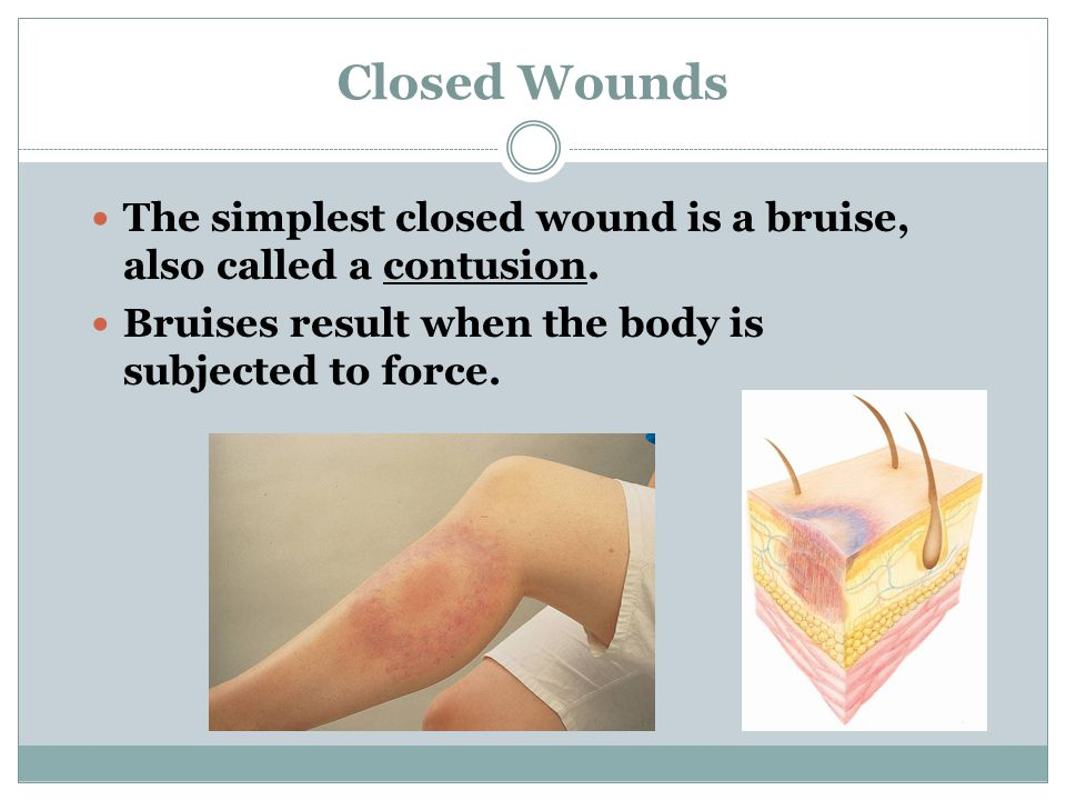 Closed Wounds The simplest closed wound is a bruise, also called a contusion.