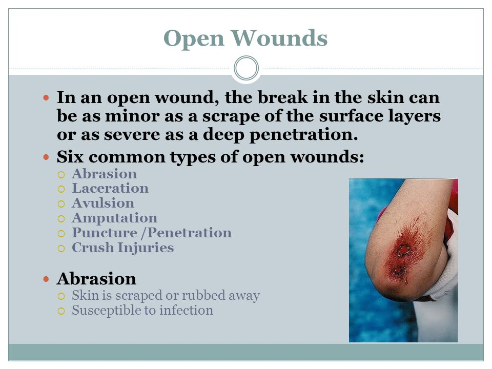 Open Wounds In an open wound, the break in the skin can be as minor as a scrape of the surface layers or as severe as a deep penetration.