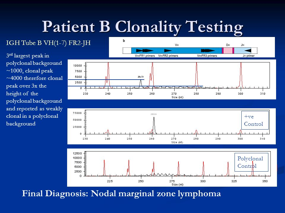 Patient B Clonality Testing