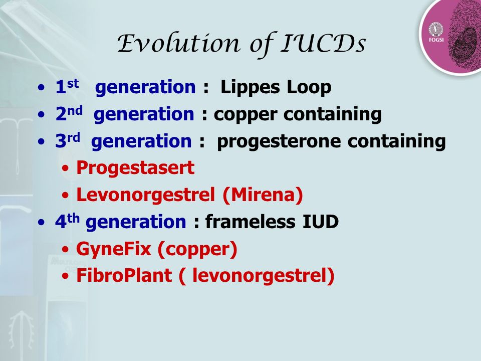 Evolution of IUCDs 1st generation : Lippes Loop