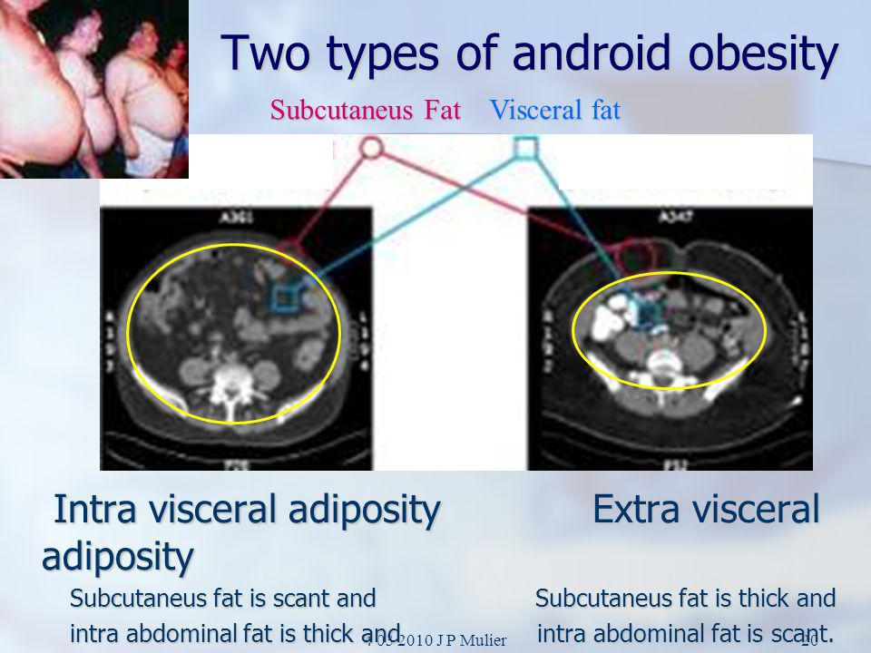 Two types of android obesity