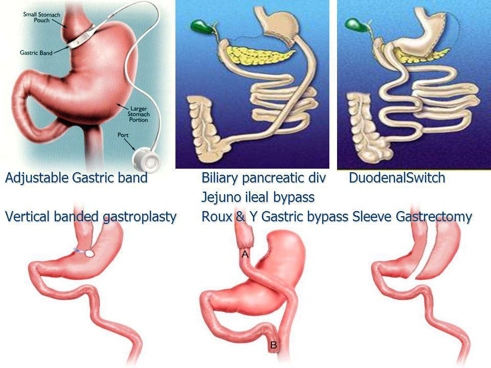 Adjustable Gastric band Biliary pancreatic div DuodenalSwitch