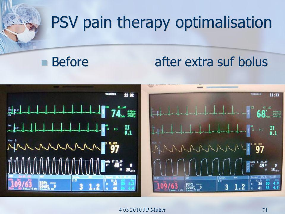 PSV pain therapy optimalisation