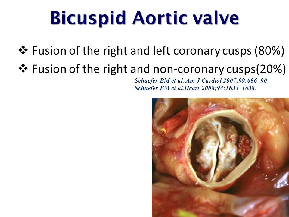 Bicuspid Aortic valve Fusion of the right and left coronary cusps (80%)