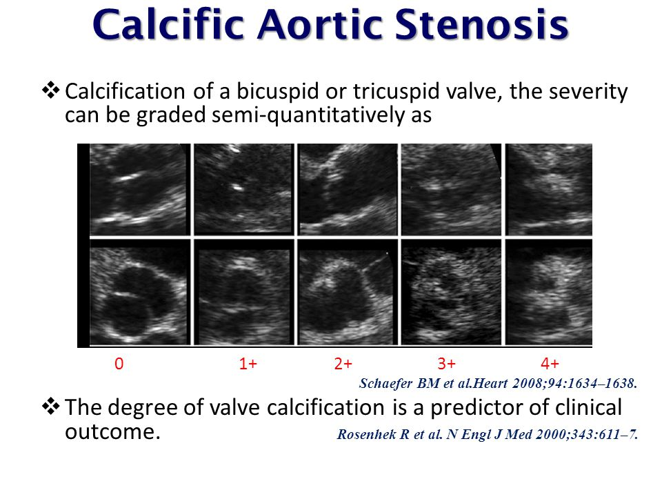 Calcific Aortic Stenosis