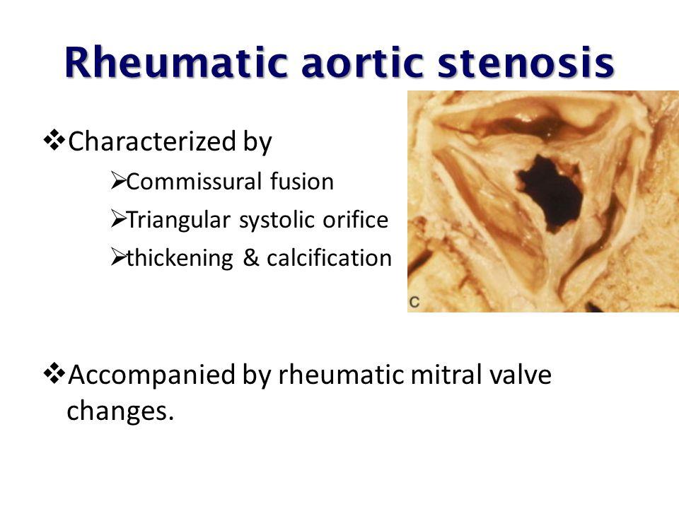 Rheumatic aortic stenosis