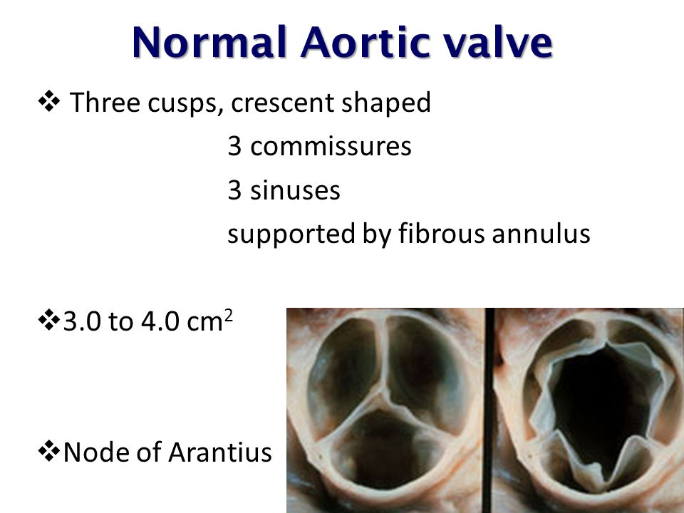 Normal Aortic valve Three cusps, crescent shaped 3 commissures