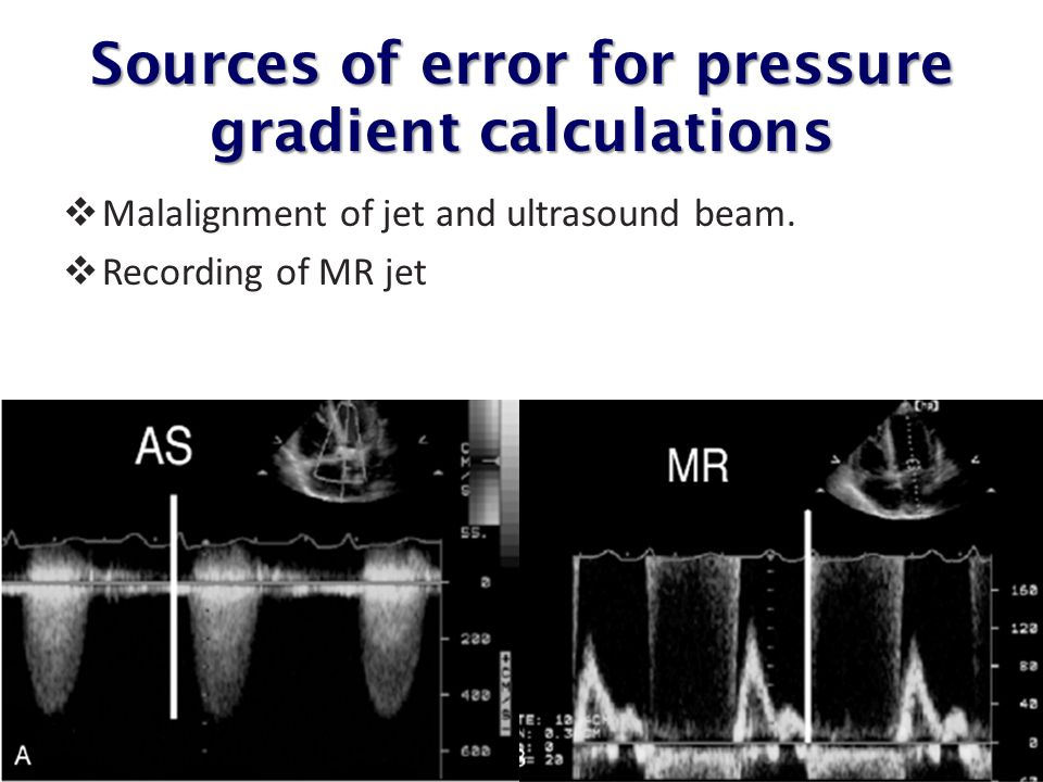 Sources of error for pressure gradient calculations