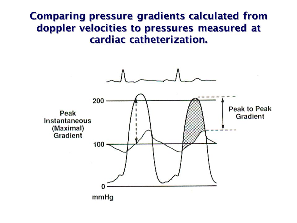 Comparing pressure gradients calculated from doppler velocities to pressures measured at cardiac catheterization.